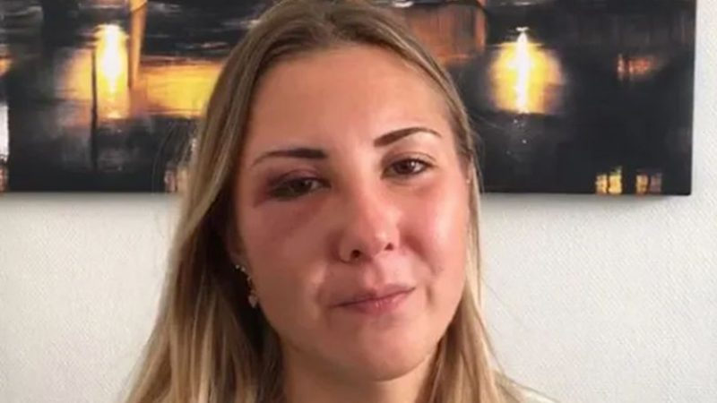 Young woman, 22, 'punched in face for wearing a skirt' while walking home